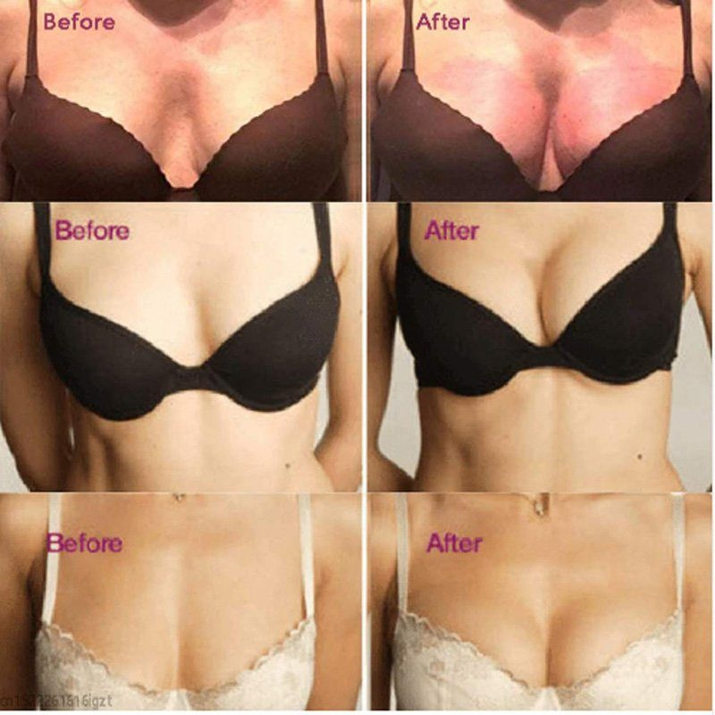 Magnetic Therapy Breast Lifts