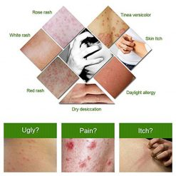 Psoriasis and Eczema Cream