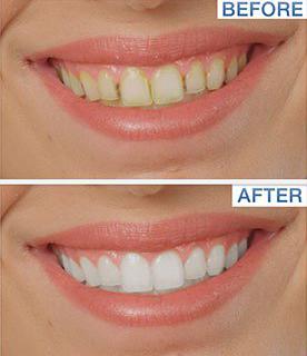 Tooth Stain Eraser