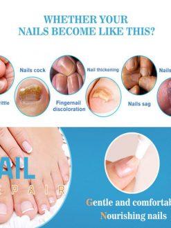 Fungal Nail Repair Pen
