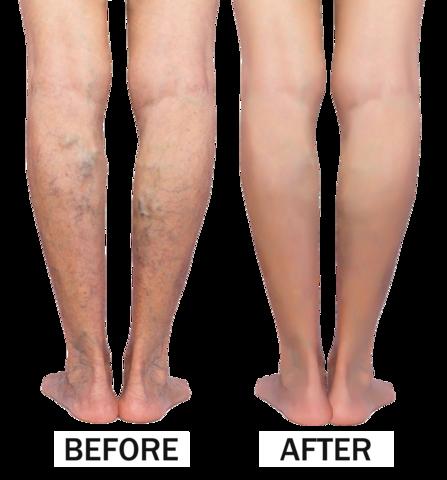 Vein Clear High Waist Leggings