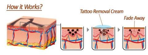 Natural Plant Extract Permanent Tattoo Removal Cream